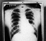 Image for Tuberculosis and the Māori People of the Wairoa District