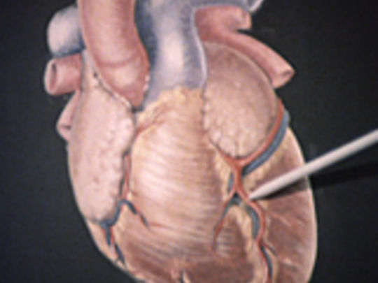 Thumbnail image for Recovering from a Coronary