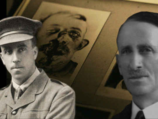 Thumbnail image for Great War Stories 1 - Harold Gillies and Henry Pickerill